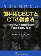 今さら聞けない歯科用CBCTとCTの読像法 三次元でみる顎顔面領域の正常画像解剖と疾患