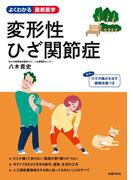 変形性ひざ関節症(よくわかる最新医学シリーズ)