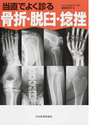 当直でよく診る骨折・脱臼・捻挫