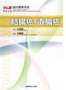 結腸癌・直腸癌 (がん研スタイル癌の標準手術)