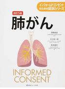 肺がん 改訂5版 (インフォームドコンセントのための図説シリーズ)