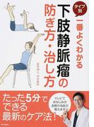 一番よくわかるタイプ別下肢静脈瘤の防ぎ方・治し方