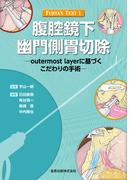 腹腔鏡下幽門側胃切除 outermost layerに基づくこだわりの手術