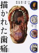 描かれた歯痛 白と黒、および神経からなる歯科医療挿画