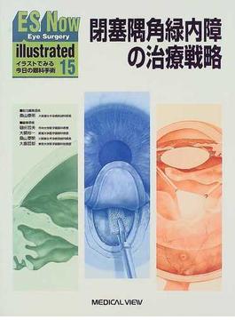 ES now illustrated イラストでみる今日の眼科手術 15 閉塞隅角緑内障の治療戦略