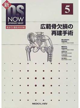 広範骨欠損の再建手術