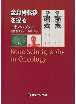 全身骨転移を探る 骨シンチグラフィ