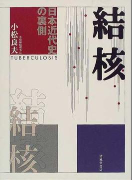結核 日本近代史の裏側