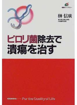 ピロリ菌除去で潰瘍を治す(健康ライブラリー)