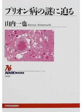 プリオン病の謎に迫る(NHKブックス)