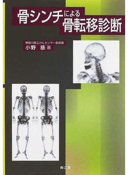 骨シンチによる骨転移診断