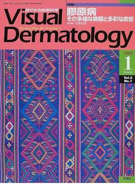 Visual Dermatology Vol.2No.2(2003−1) 〈特集〉膠原病−その多様な病態と多彩な皮疹