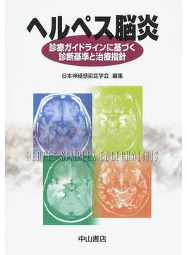 ヘルペス脳炎 診療ガイドラインに基づく診断基準と治療指針