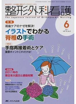 整形外科看護 第16巻6号(2011−6) 術後ケアのナゼを解決!イラストでわかる脊椎の手術