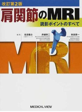 肩関節のMRI 読影ポイントのすべて 改訂第2版