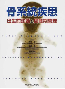 骨系統疾患 出生前診断と周産期管理