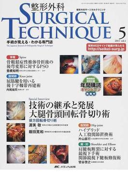 整形外科SURGICAL TECHNIQUE 手術が見える・わかる専門誌 第1巻5号(2011−5) Special Interview渥美敬×飯田寛和 脊椎 膝関節 股関節 肩・肘