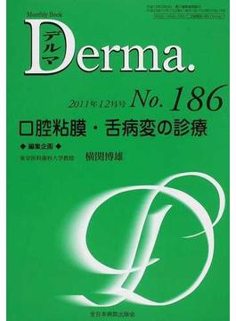 デルマ No.186(2011年12月号) 口腔粘膜・舌病変の診療