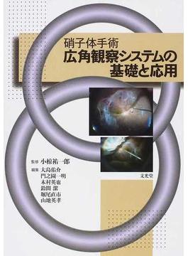 硝子体手術広角観察システムの基礎と応用