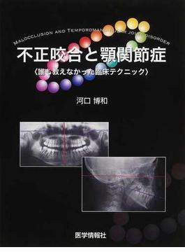 不正咬合と顎関節症 誰も教えなかった臨床テクニック