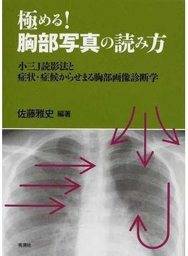 極める!胸部写真の読み方 小三J読影法と症状・症候からせまる胸部画像診断学