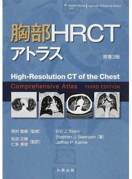 胸部HRCTアトラス