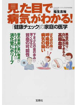 見た目で病気がわかる! 「健康チェック」の家庭の医学(宝島SUGOI文庫)