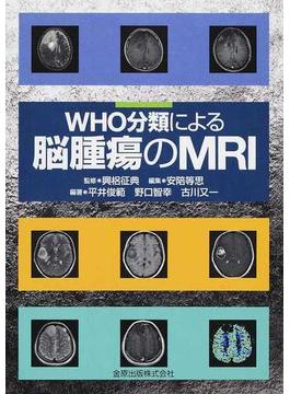 WHO分類による脳腫瘍のMRI