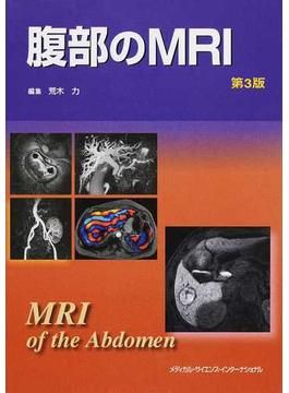腹部のMRI 第3版