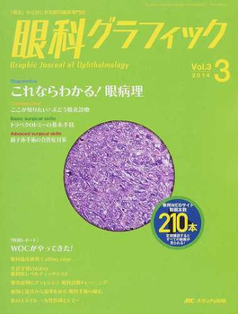眼科グラフィック 「視る」からはじまる眼科臨床専門誌 第3巻3号(2014−3) これならわかる!眼病理ほか