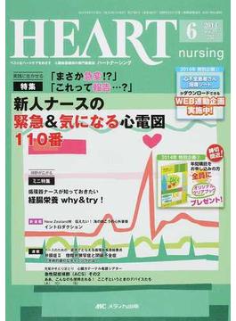 ハートナーシング ベストなハートケアをめざす心臓疾患領域の専門看護誌 第27巻6号(2014−6) 特集新人ナースの緊急&気になる心電図110番