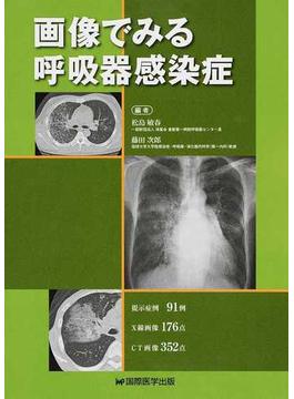 画像でみる呼吸器感染症