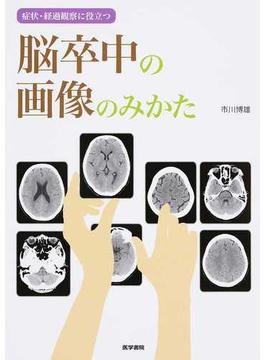 症状・経過観察に役立つ脳卒中の画像のみかた