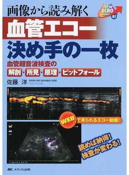 画像から読み解く血管エコー決め手の一枚 血管超音波検査の解剖・所見・原理・ピットフォール