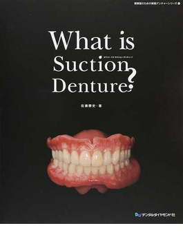 What is Suction Denture?