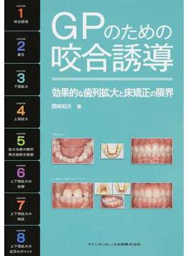 GPのための咬合誘導 効果的な歯列拡大と床矯正の限界