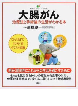 大腸がん 治療法と手術後の生活がわかる本 イラスト版(健康ライブラリー)