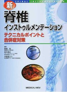 新脊椎インストゥルメンテーション テクニカルポイントと合併症対策
