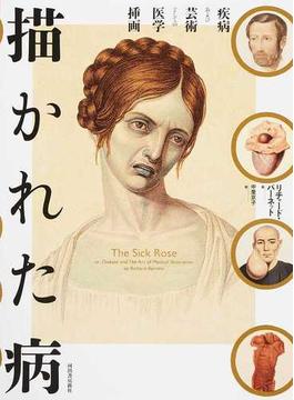 描かれた病 疾病および芸術としての医学挿画