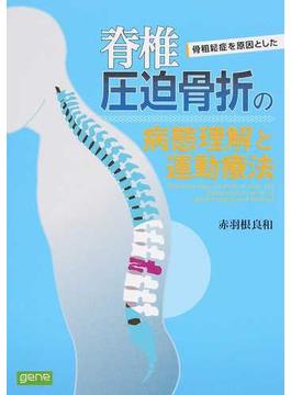骨粗鬆症を原因とした脊椎圧迫骨折の病態理解と運動療法