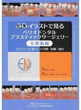 3Dイラストで見るペリオドンタルプラスティックサージェリー エビデンスに基づいた切開・剝離・縫合 天然歯編