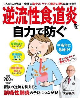 逆流性食道炎を自力で防ぐ 3人に1人が悩む!食後の胸やけ、ゲップ、胃液の戻りに要注意!!(扶桑社MOOK)