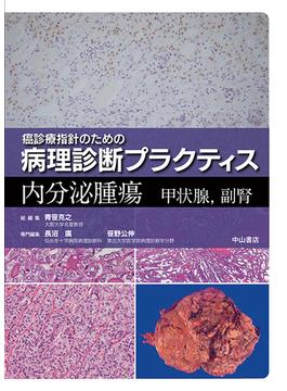 癌診療指針のための病理診断プラクティス 内分泌腫瘍 甲状腺,副腎