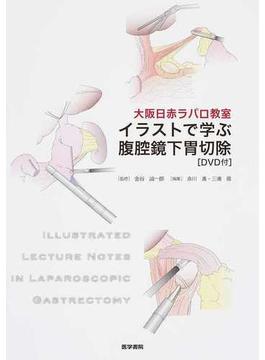 イラストで学ぶ腹腔鏡下胃切除 大阪日赤ラパロ教室