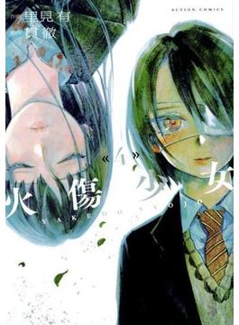 火傷少女(4) 4(アクションコミックス)