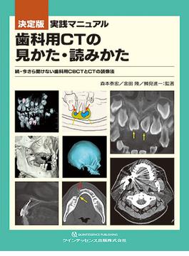 決定版実践マニュアル歯科用CTの見かた・読みかた 今さら聞けない歯科用CBCTとCTの読像法 続
