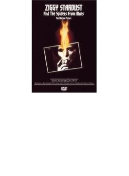 Ziggy Stardust (Ltd)