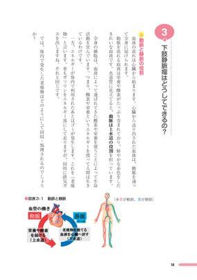 下肢 静脈 瘤 予防